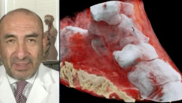 Un escáner 3D se suma al bando de la tecnología en la batalla contra el cáncer