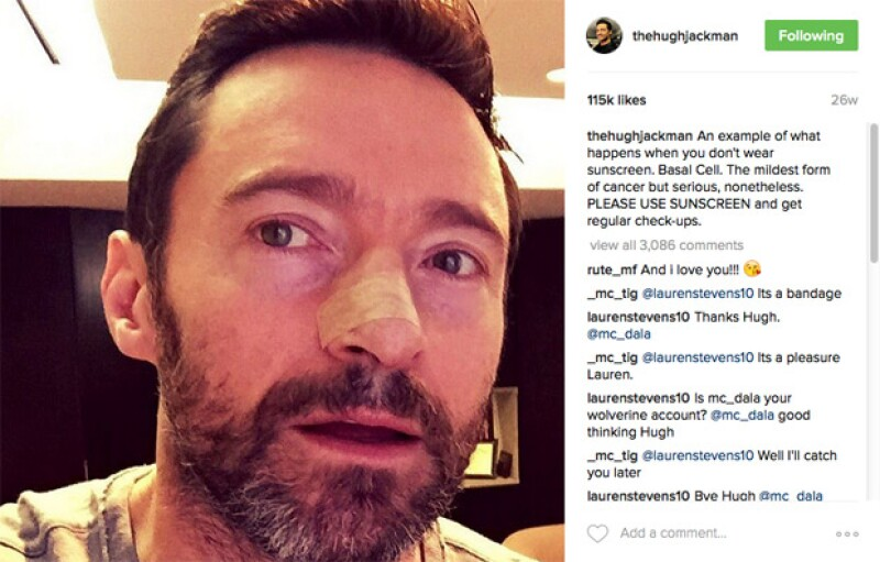 Hugh Jackman ha compartido una foto de casa una de sus cirugías, aquí la de la última.