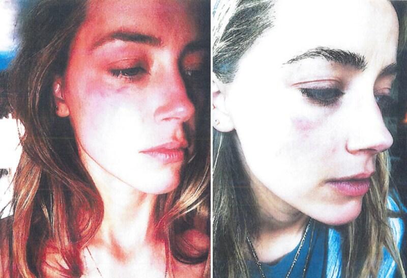 Estas fueron algunas de las fotografías que Amber presentó ante la corte como evidencia de violencia doméstica.