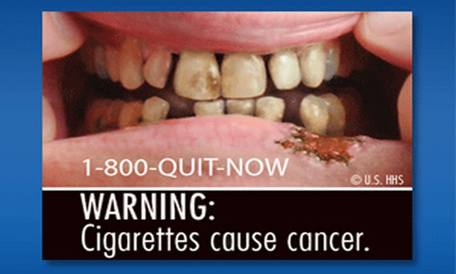 Entre las imágenes difundidas por la Administración de Alimentos y Medicinas de Estados Unidos (FDA, por sus siglas en inglés) hay dientes y encías putrefactas y un hombre con traqueotomía.