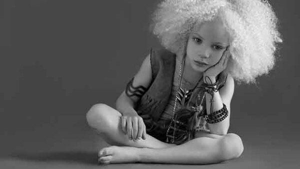A sus 8 años de edad, esta pequeña ha logrado conquistar a fotógrafos y productores alrededor del mundo, convirtiendo su trastorno genético en una parte más de su encanto.