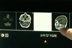 Sistema de inteligencia artificial detecta tumores y hematomas