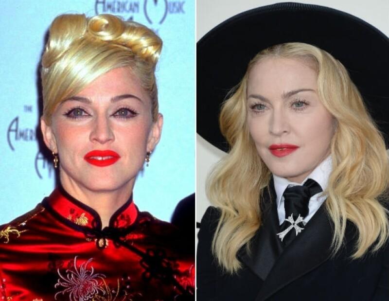 Madonna en 1999 y, a la derecha, a principios de año. Su rostro luce notablemente hinchado.
