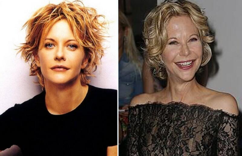 La actriz ha sido criticada por abusar del bisturí.