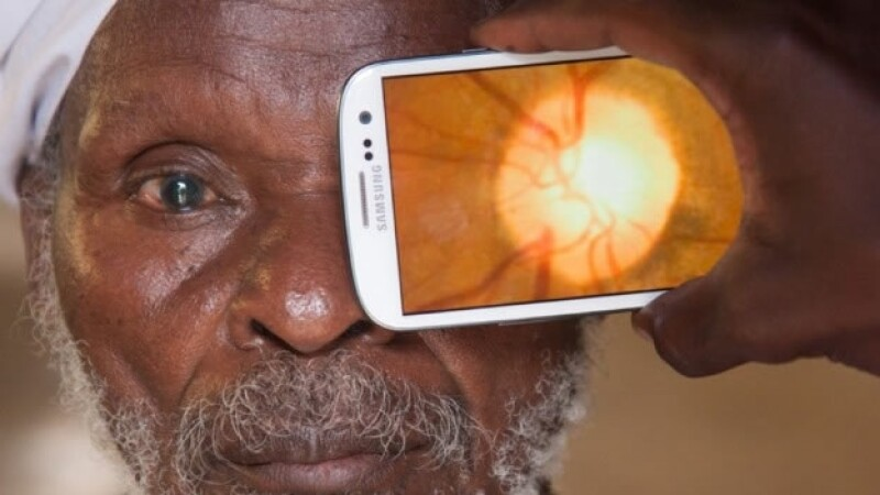 app examenes oculares