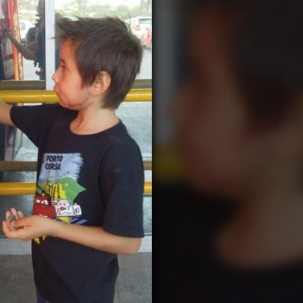 Niño con reimplante facial