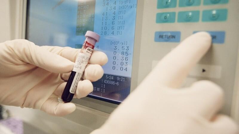 prueba sangre laboratorio