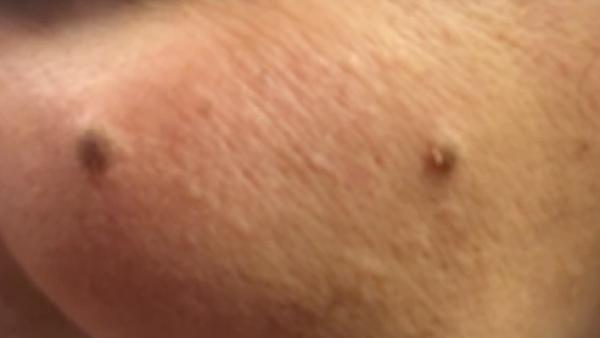 ¿Cuándo una mancha en tu piel requiere tratamiento?