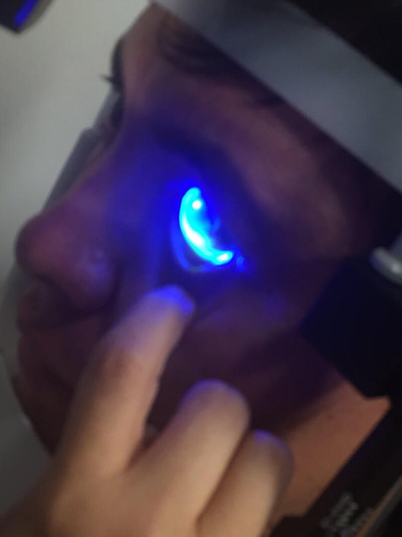 Kuno está a la espera de que le informen si el daño en su ojo es reversible.