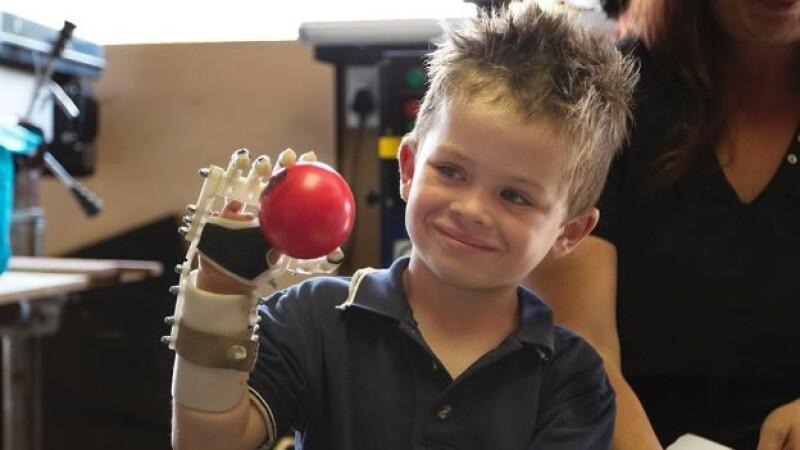 protesis impresas en 3D
