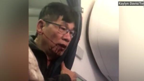 Pasajero violentado prepara revancha contra United Airlines