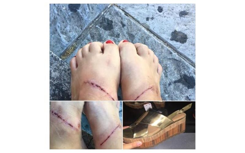 La compañía de fast fashion se ha visto envuelta en polémica debido a que una clienta asegura que estas sandalias provocaron graves heridas a sus pies, y tenemos las fotos que lo demuestran.