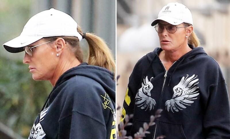 El ex esposo de Kris Jenner hablará sobre sus recientes cambios estéticos en un programa, de acuerdo con el sitio TMZ.