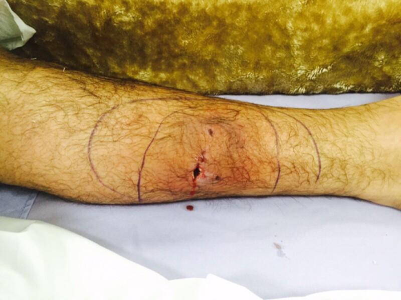 Esta fue la herida que le hizo su perro en la pantorrilla.