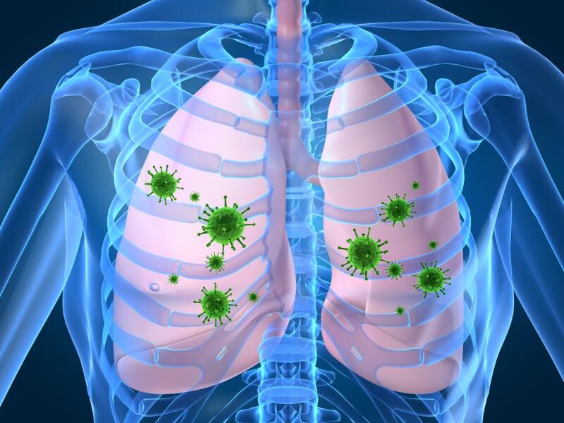 "Image result for pulmones con neumonia"""